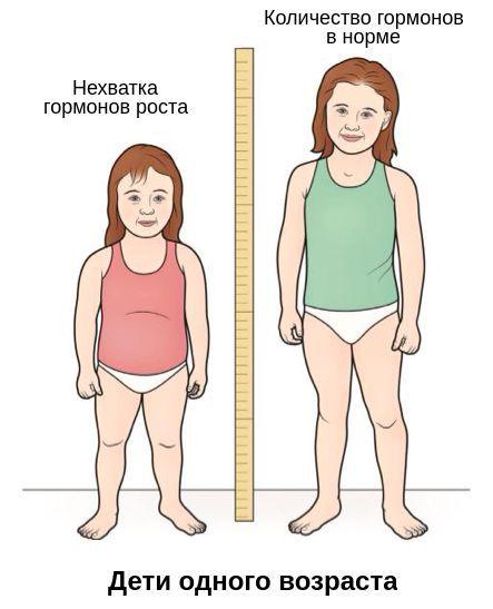 deficit-gormona-rosta